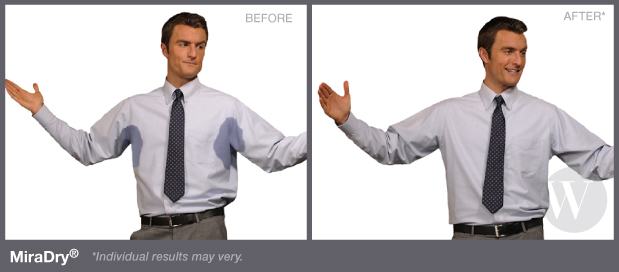 Before and after Miradry treatment shows less signs of underarm sweating
