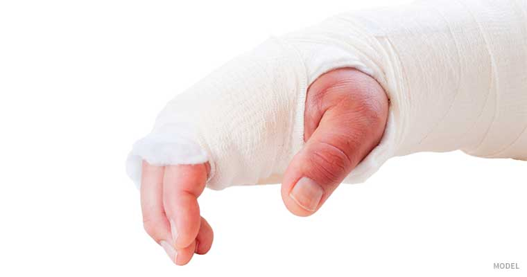 Person's hand in a cast