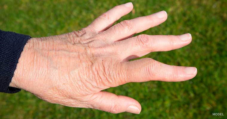 Shape of hand with boutonnière deformity