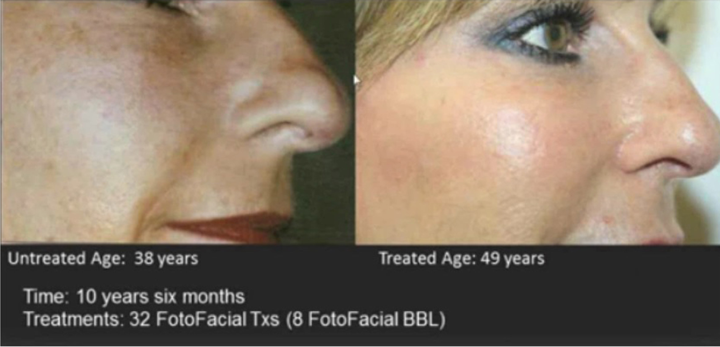 BBL Face before & After Treatment