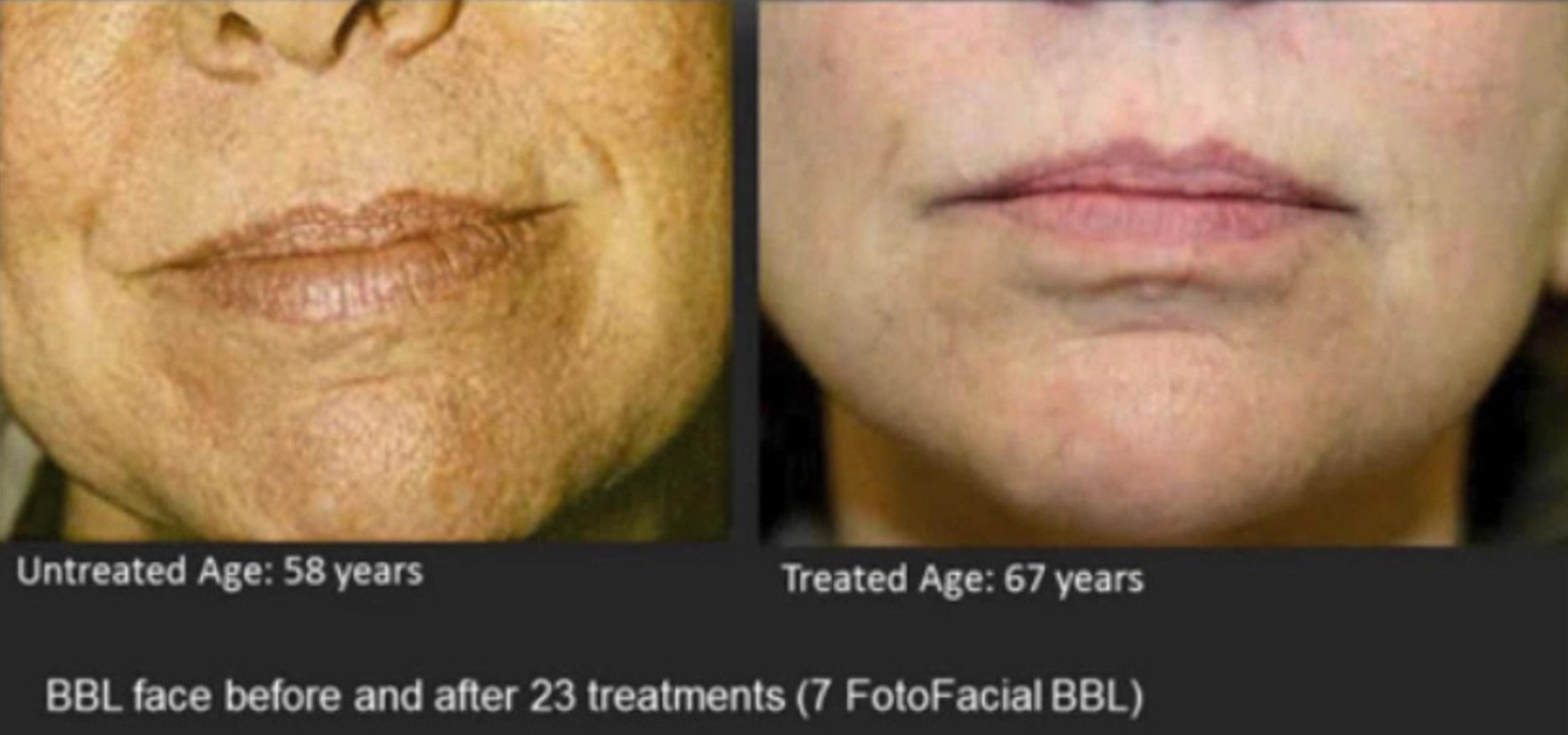 BBL Face before & After