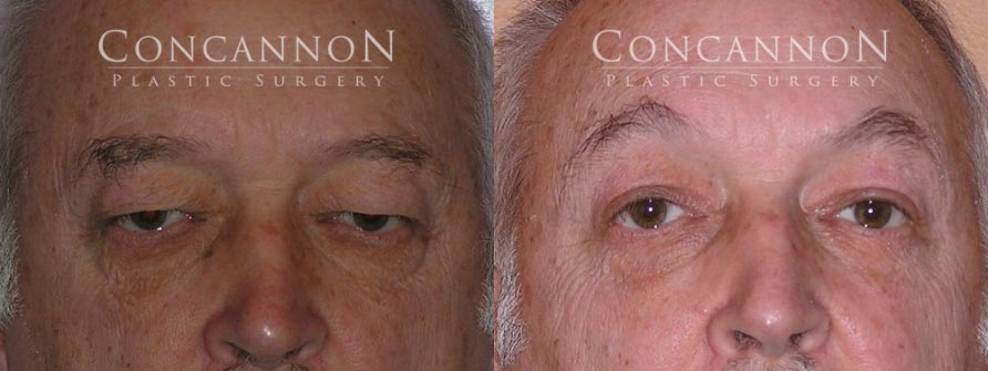 Before and After Brow Lift Surgery