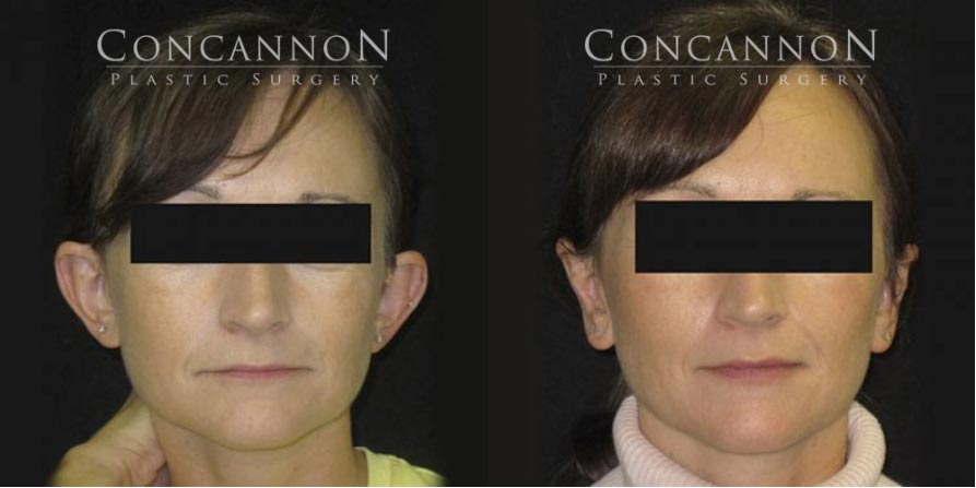 Concannon Plastic Surgery Patient: Before and After Ear Surgery