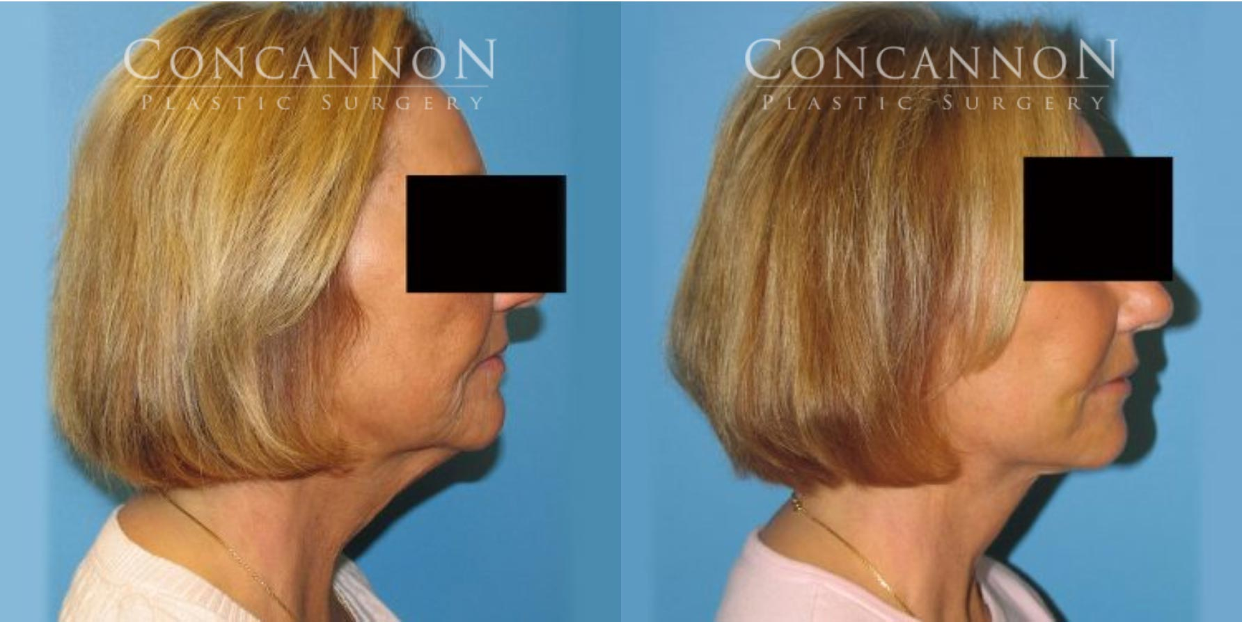 Before and After Facelift Procedure
