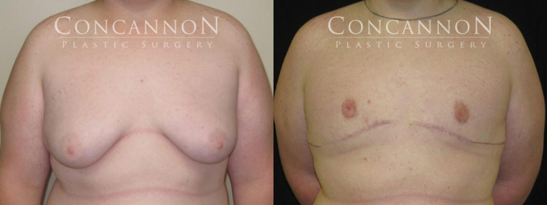 Before and After Photo - Gynecomastia Surgery