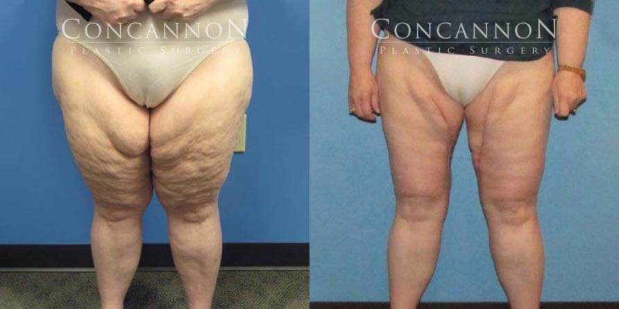 Before and After Thigh Lift Procedure