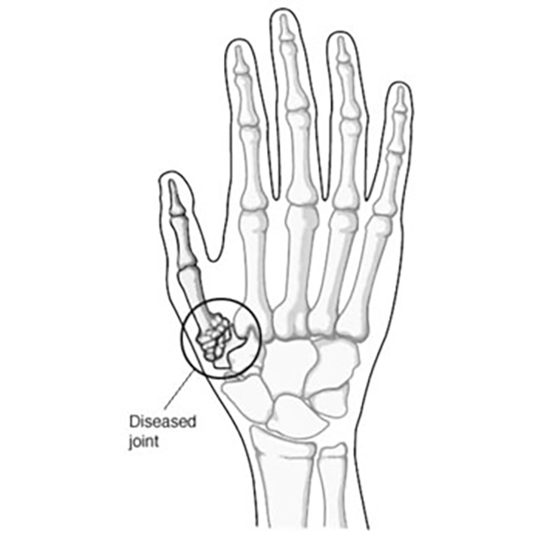 Diagram: hand with diseased joint