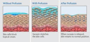 Diagram: How Profusion Skin Therapy Works