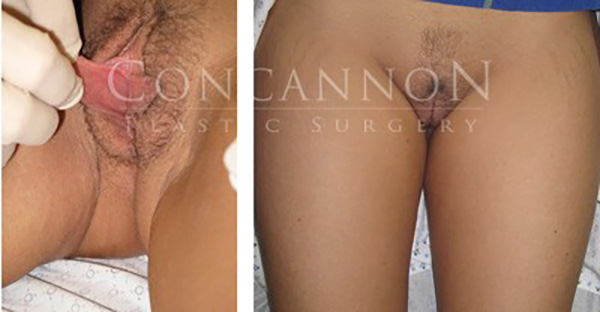 Labiaplasty Actual Patient Before and After Results