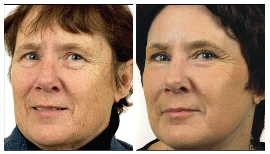 Before and After Results for Skin Resurfacing
