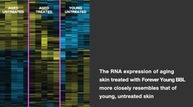 The RNA expression of aging skin treated with Forever Young BBL more closely resembles that of a young, untreated skin