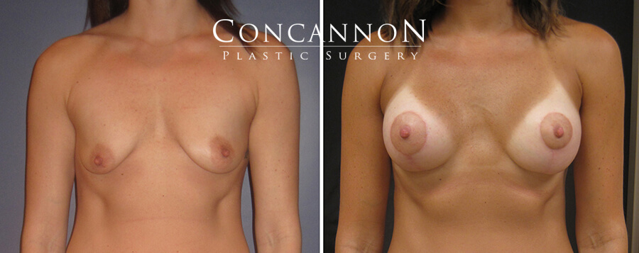 Dr. Concannon patient: Before and after breast augmentation. Results may vary