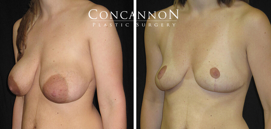 Breast Lift Featured Patient